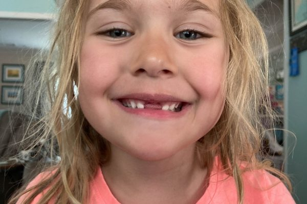 Lost Tooth #5