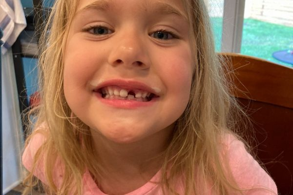 Lost Tooth #4